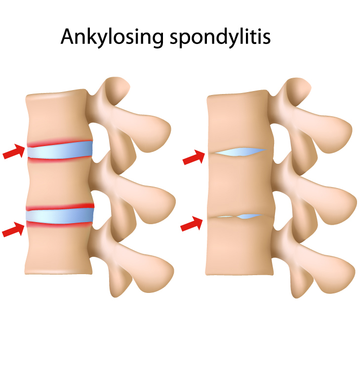 ankylosing spondylitis essay Ankylosing spondylitis is a type of arthritis that involves bone fusion, leading to pain in the lower back and elsewhere find out more.